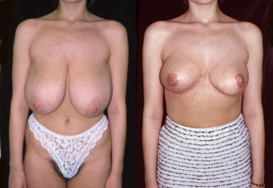Breast augmentation before and after clothed photos