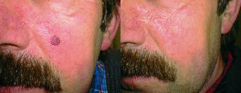 Skin Tag Removal Before and After