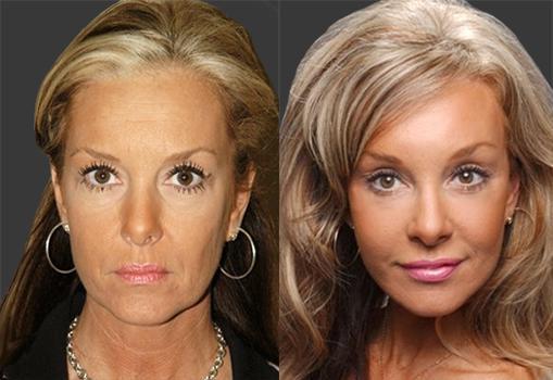 Clinique Of Plastic Surgery Facelift Smas Lifting