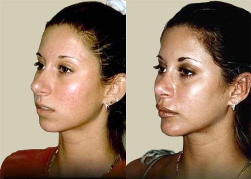 Clinique Of Plastic Surgery Lip Augmentation