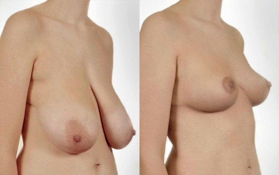 Фото обвисшей маленькой груди