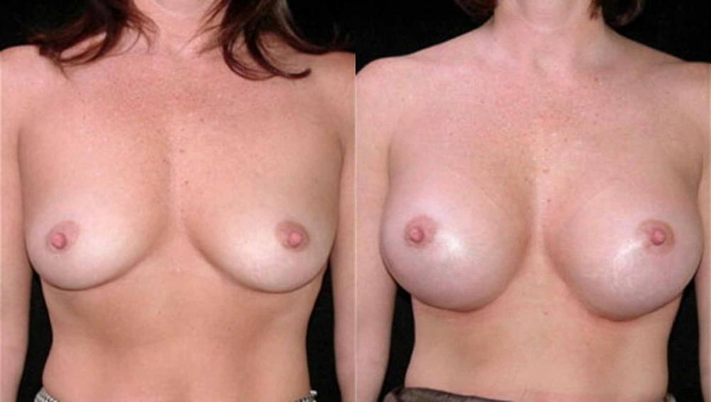 Proof Proven Results For Natural Breast Enlargement 75