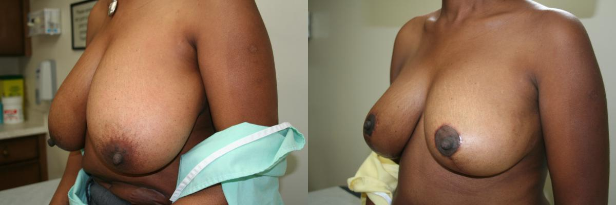 Ideal answer cost of breast reduction in canada help you?