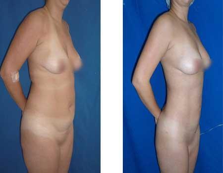 Liposuction in bogota colombia