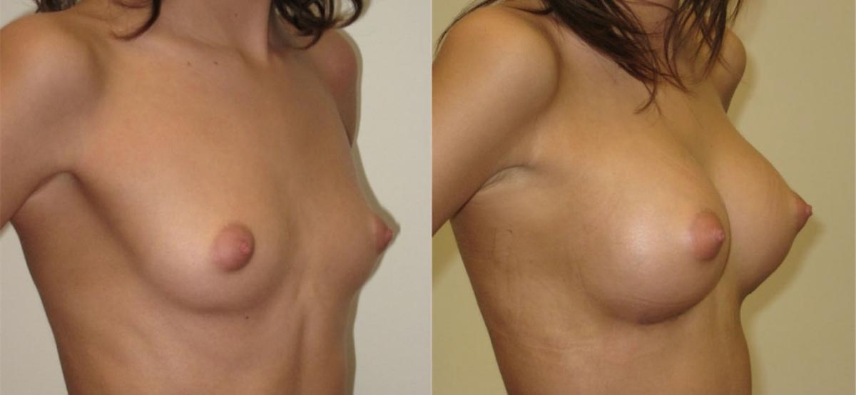 Круглая грудь фото