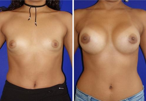 Sex breast augmentation