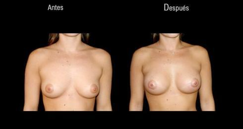 FAQs For, breast Augmentation, recovery, breast