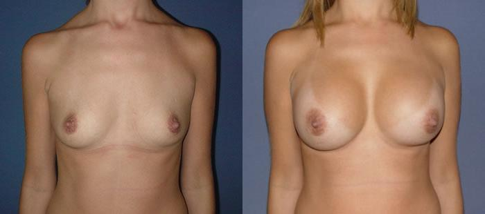 breast augmentation caracas