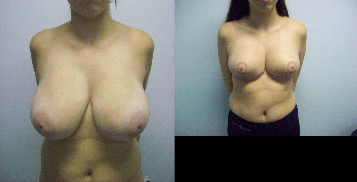 Mom handjob young girls breast reduction