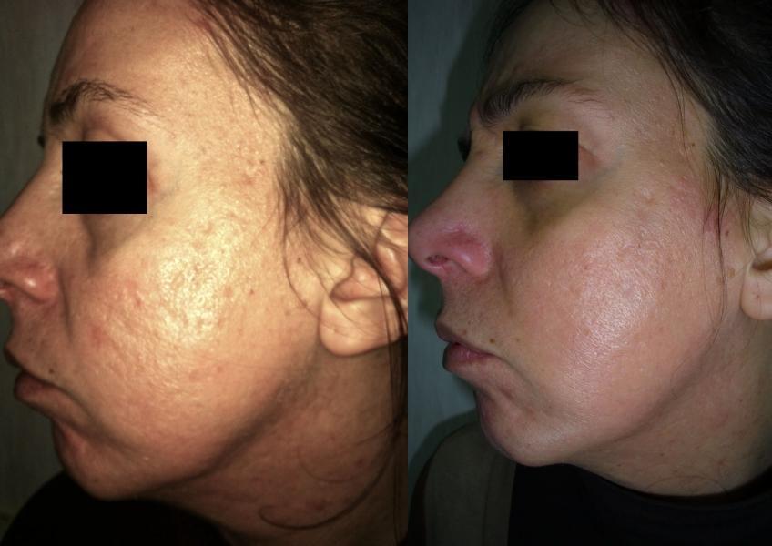 I consigli del cosmetologo su cura di grasso e problema affrontano la pelle