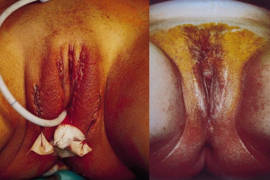 перила, операция превращение члена во влагалище утверждает, что