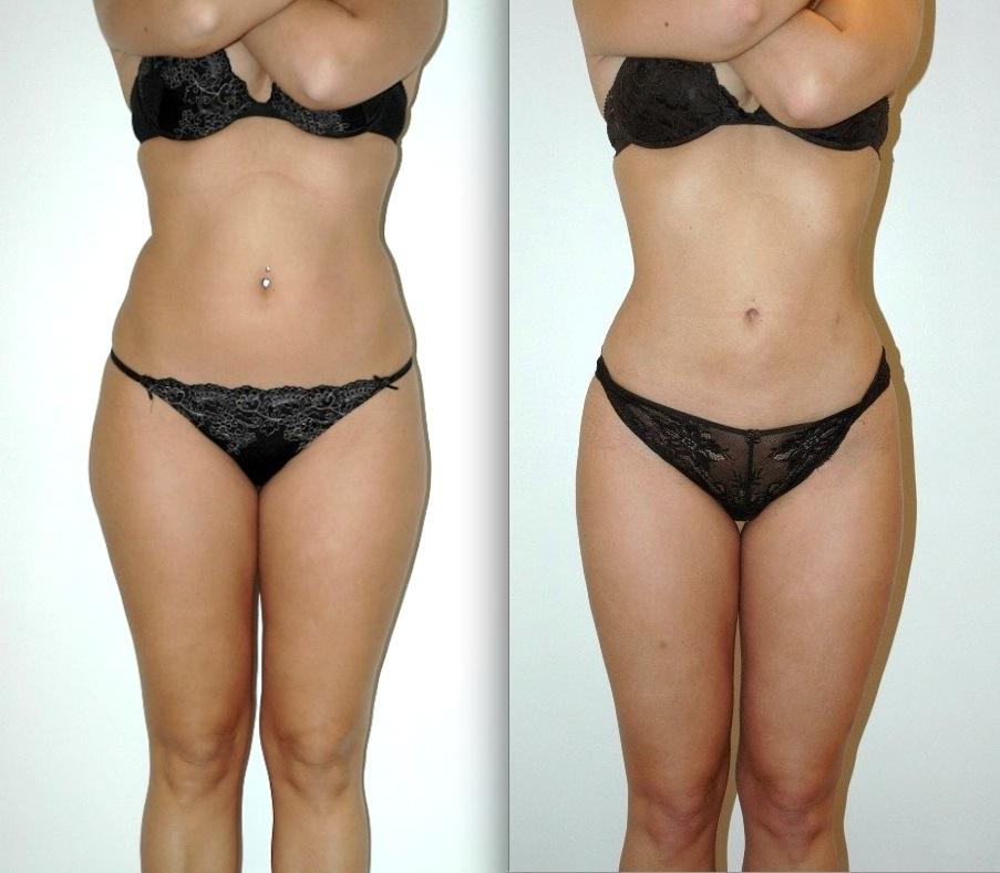 Liposuction Doctors Liposuction Surgeons Clinics On