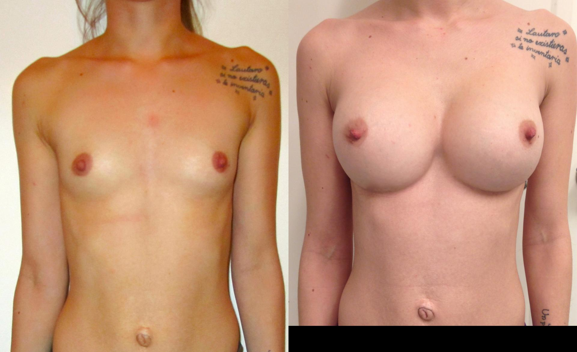 implants in argentina breast