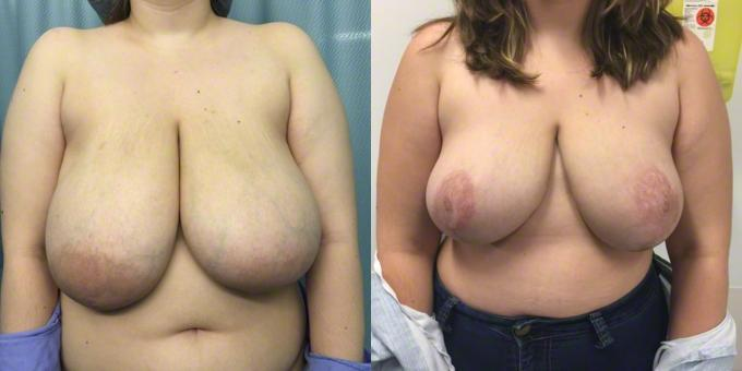 Consider, cost of breast reduction in canada